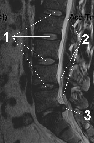 Увеличение груди макролайн macrolane