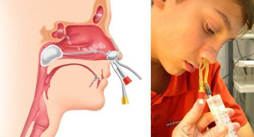 При аденоидах у ребенка заложен нос как лечить