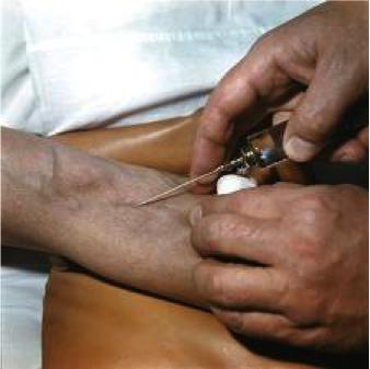 Хлористый укол в вену показания к применению