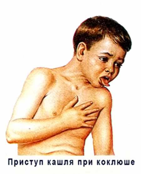 историю болезни коклюш