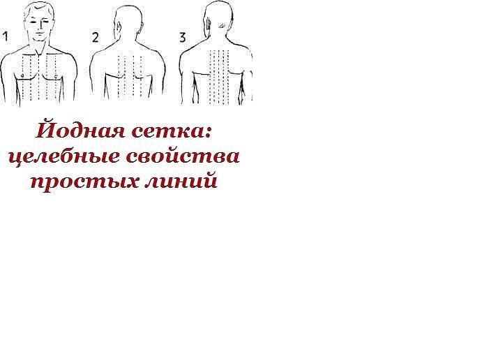 Йодовая сетка целебные свойства (Анатолий Ревуцкий) / Проза.ру