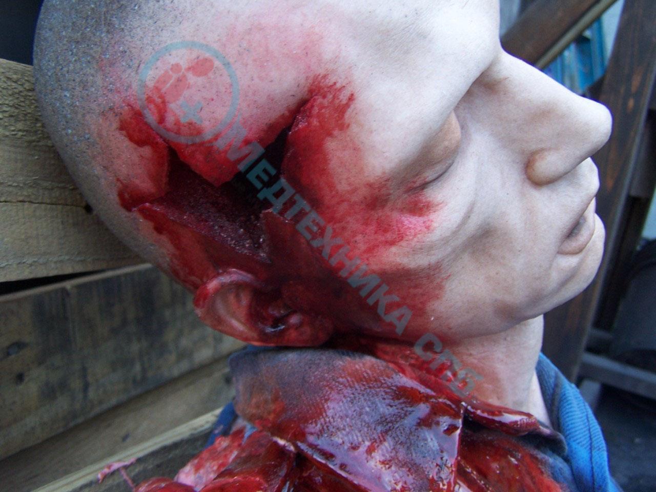Фото раны на теле человека 5